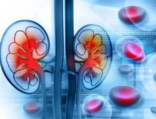4 Ways to Prevent Kidney Stones