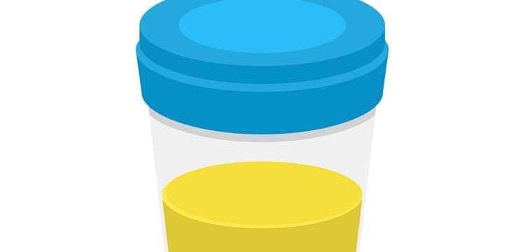 What Is the Color of Healthy Urine?